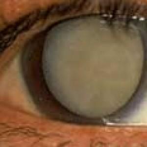 "mature or ""ripe"" cataract"
